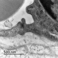 Cell junction visualized on a Transmission Electron Microscope